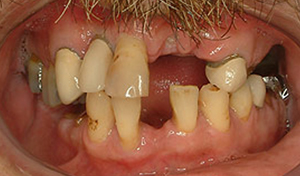 Los Angeles dental implants photo of patient (pm1-2) in the smile gallery of Dr. Robert Thein.