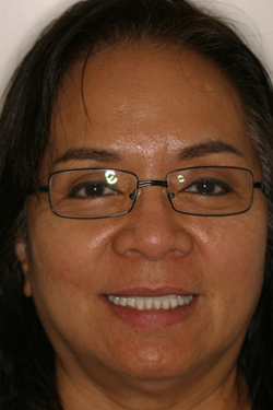 Smile gallery before photo 1 of patient (je) for Los Angeles dental implants from Dr. Robert Thein.