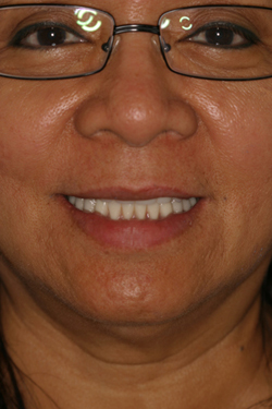 Smile gallery before 2 of patient (je) for Los Angeles dental implants from Dr. Robert Thein.