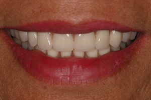 Smile gallery after photo 3 of patient (C) for Los Angeles dental implants from Dr. Robert Thein.
